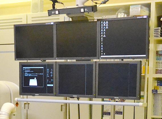 血管撮影装置02